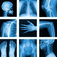 img-radiologie-01